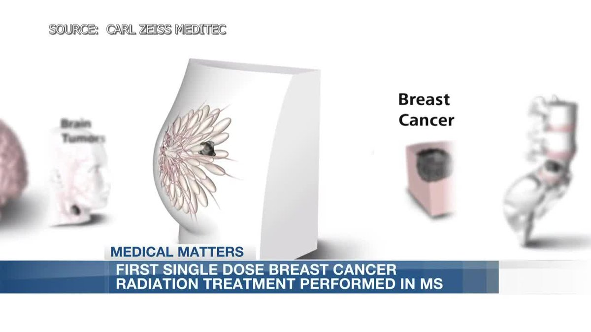 First in Mississippi: Breast cancer single dose radiation to reduce length of treatments